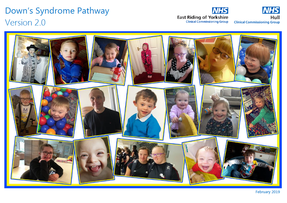 Many young people with down syndrome